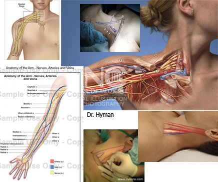 image Irritated nerves in neck can cause tingling and numbness in arm/hand